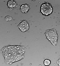 Cloning and Stem Cells: Hopes and Fears of Human Cloning and Stem ...